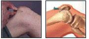 El tratamiento de la hernia intervertebral por el masaje de miel